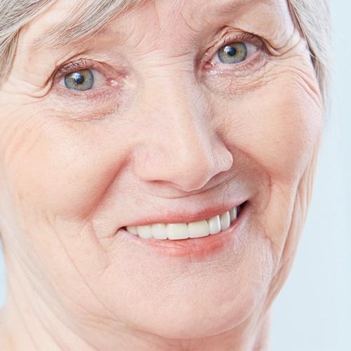 műfogsor, protézis kinézete a páciens elégedett mosolyával