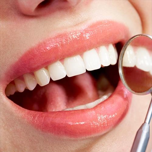 műfogsor fogak elhelyezkedése az mosoly szempontjából