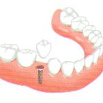 implantátum egy-két foghiány esetén