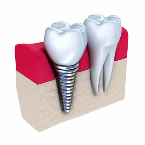 fogászati implantátum elhelyezkedése a csontozatban a mellette lévő foghoz képest